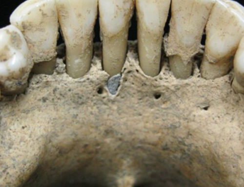 The Surprise Discovery of Lapis Lazuli on a Medieval Woman's Teeth May Change How We View Illuminated Manuscripts